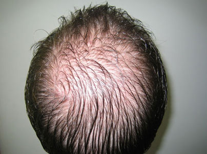 image of a woman with hair loss telogen effluvium and telogen effluvium or abnormal