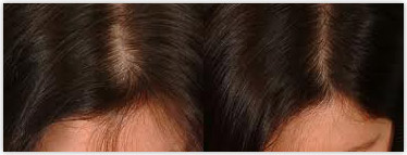 Women hair loss causes and remedies for thickening hair