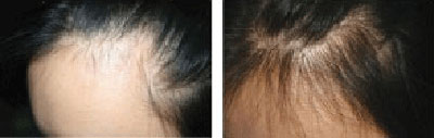 hair loss in women, thinning hair and hair falling