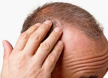 alopecia stress