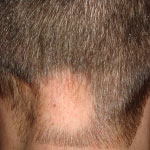 curare alopecia cure