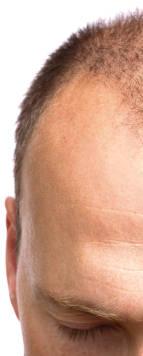 cure e rimedi per alopecia seborroica e caduta capelli causata da seborrea